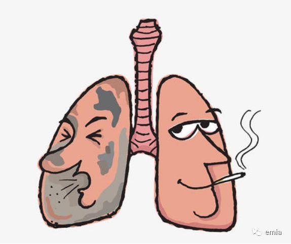 一文简解:什么是肺癌?